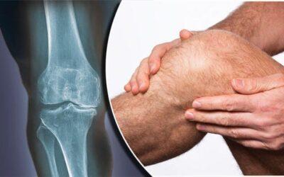 Hvad er slidgigt i knæet